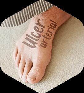 Ulcer arterial laba piciorului