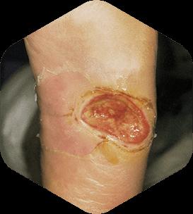 Ulcer varicos adanc fara infectie