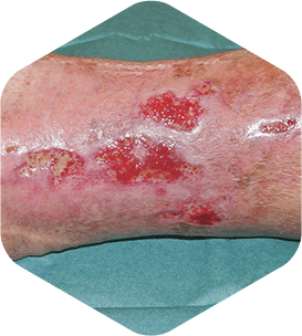 ulcer varicos superficial fara infectie